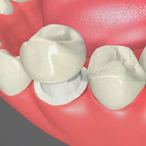 Dental Crowns Cary North Carolina