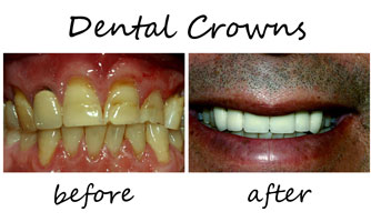 Dental Crowns 2
